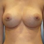 powie%cc%a8kszanie-piersi-2