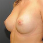 implant-piersi-anatomiczny