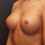 implant-piersi-okrągły