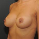 implanty-piersi-anatomiczne