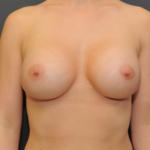implanty-piersi-okrągłe