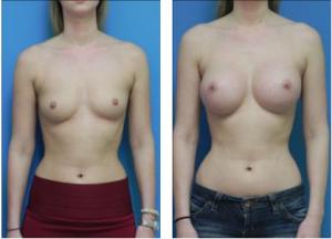 powiększenie-piersi-z-A-do-C